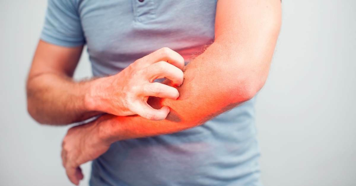 Can you use Bepanthen on Eczema? -  Salt Water Treatment for Eczema - https://organicgardeningeek.com
