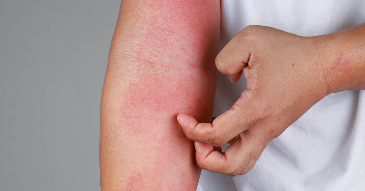 Skin Laser Treatment for Eczema - https://organicgardeningeek.com